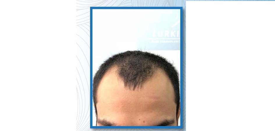 Hair Transplant Center In Dubai after_1.jpg