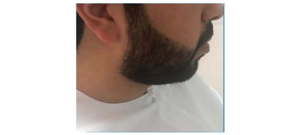 Hair Transplant Center In Dubai after_4.jpg