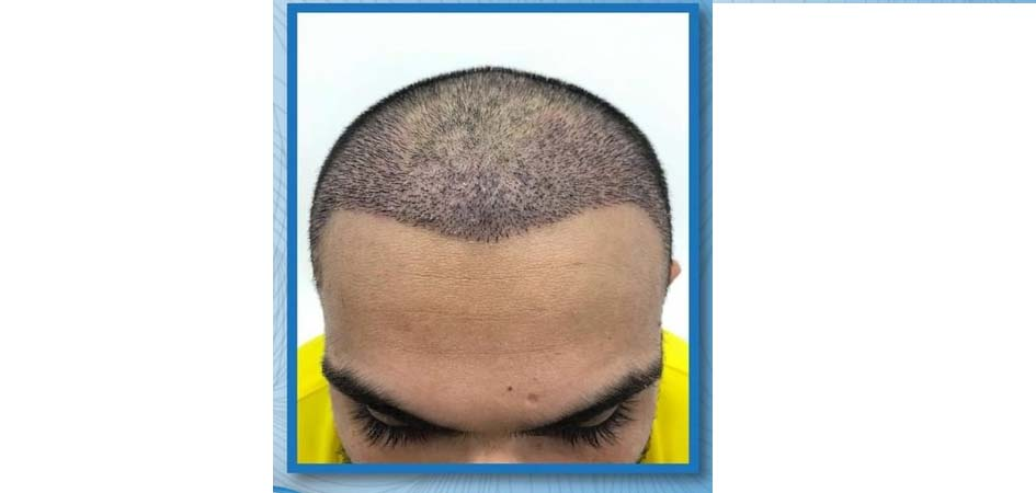 Hair Transplant Center In Dubai before_1.jpg