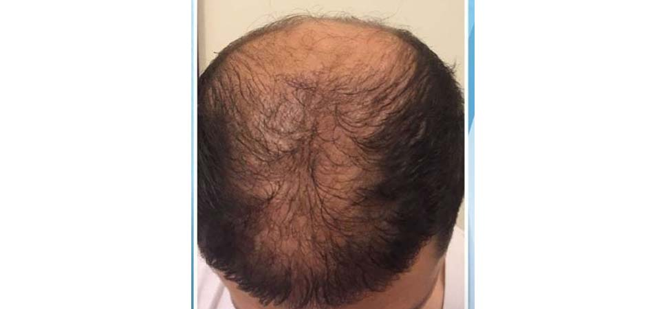 Hair Transplant Center In Dubai before_2.jpg