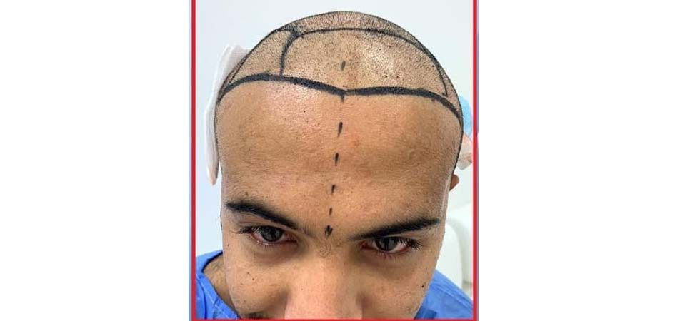 Hair Transplant Center In Dubai before_3.jpg